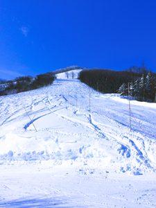 斑尾高原スキー場中腹からみた青空の写真[Photo10239]